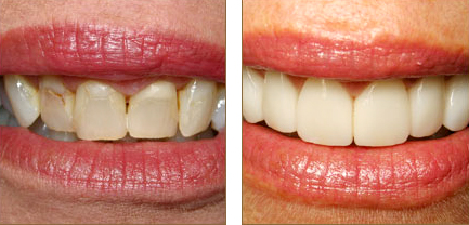 Before and after veneers - a speciality at Aquila Dental